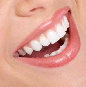 lamina gülüş tasarımmı yaprakk diş