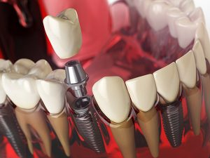 model üzerinde implant çizimi