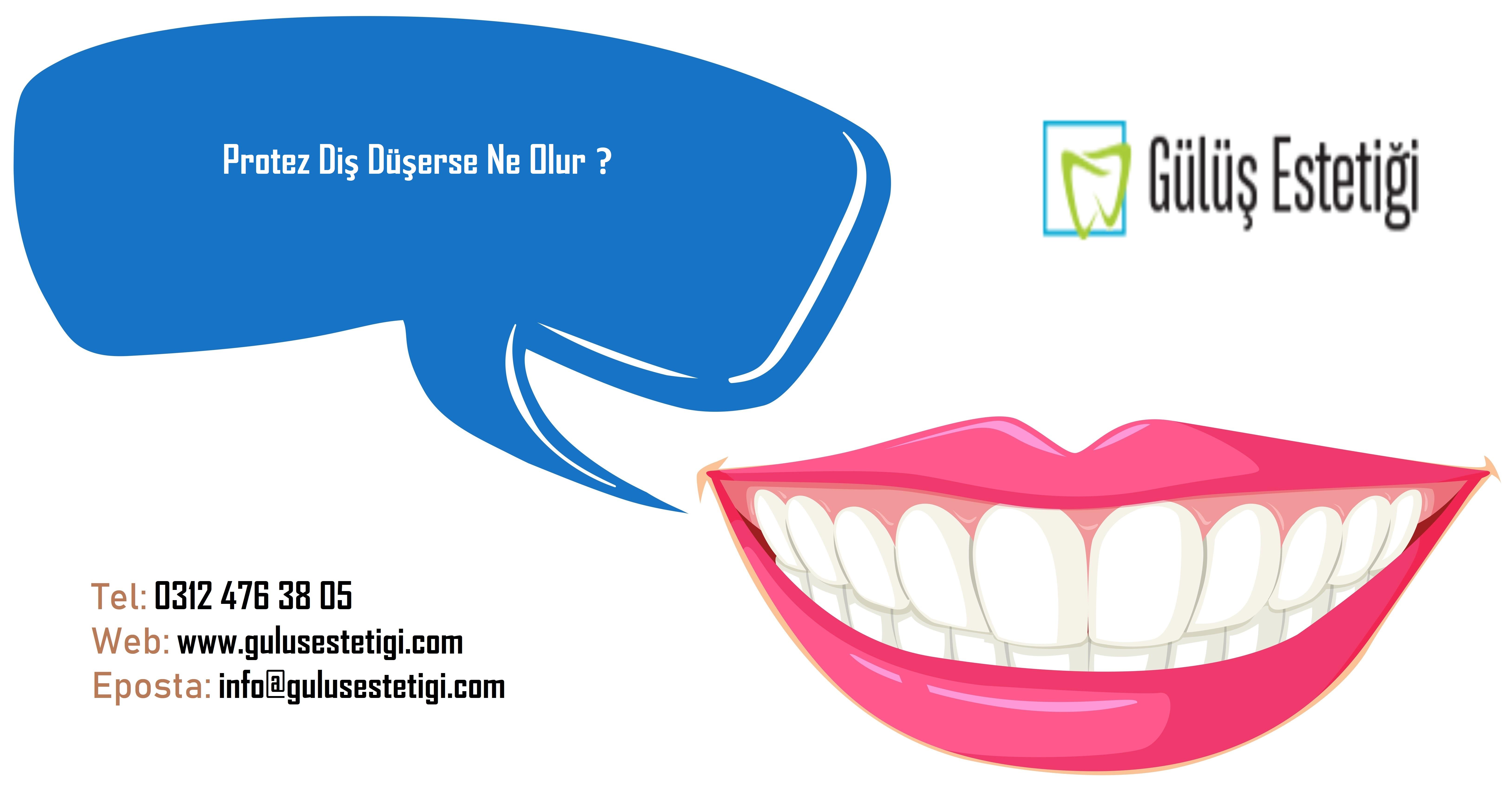 Protez Diş Düşerse Ne Olur