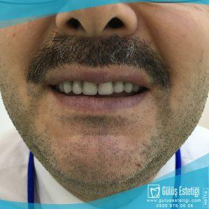 Damak Protez Dişleri