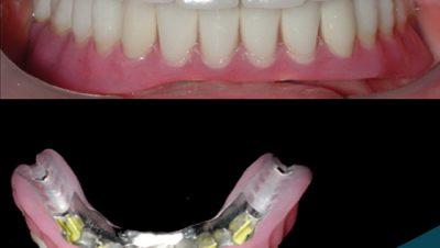 Ankerli Protez Diş Uygulamalarımız
