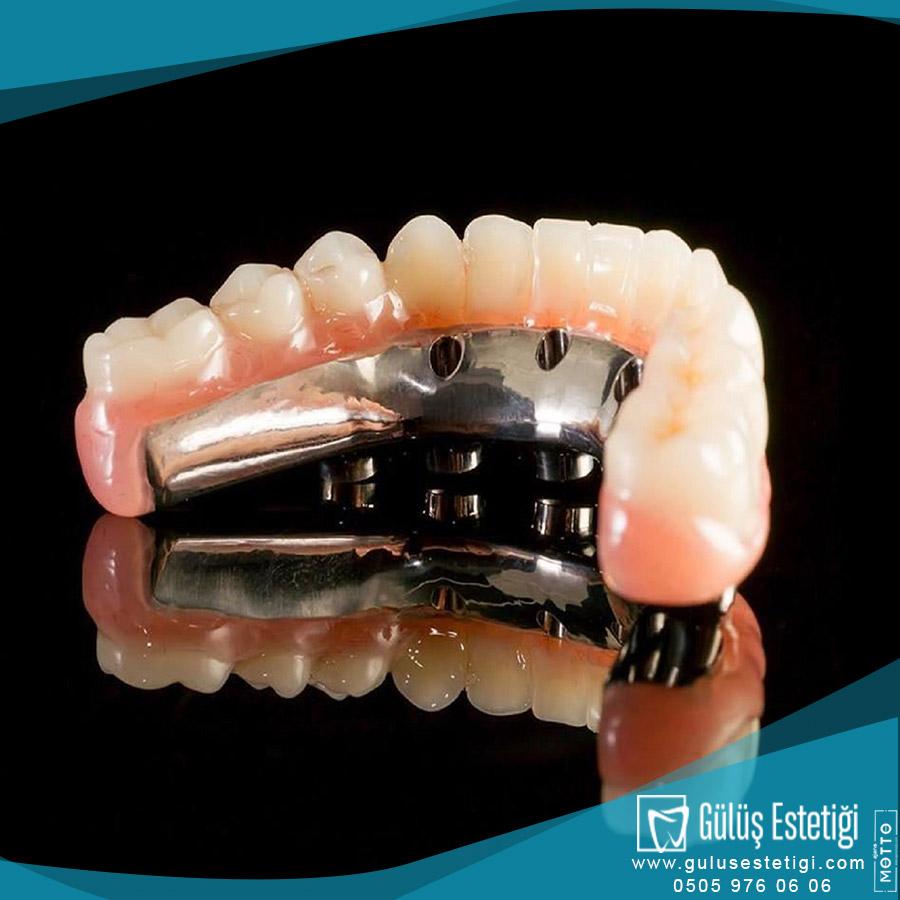 Çıtçıtlı Protez Diş