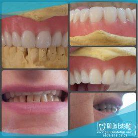 Damak Diş Tedavisi