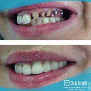 Ankerli Diş Tedavisi