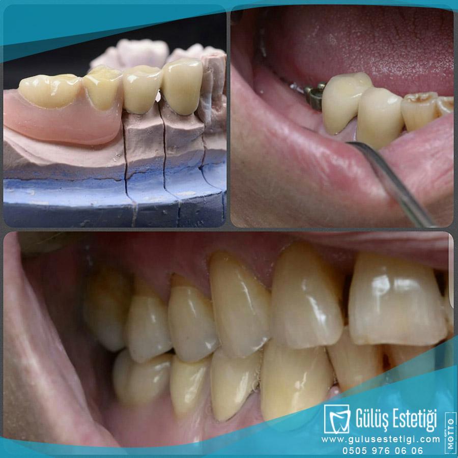 Ankerli Diş Protezi