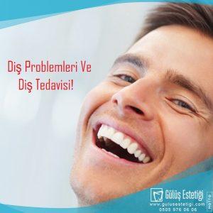 Diş Problemleri Ve Diş Tedavisi