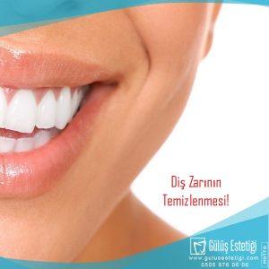 Diş Zarının Temizlenmesi