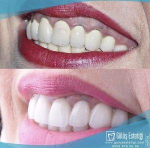 Digital Smile Design İle Farklı Bir Gülüş