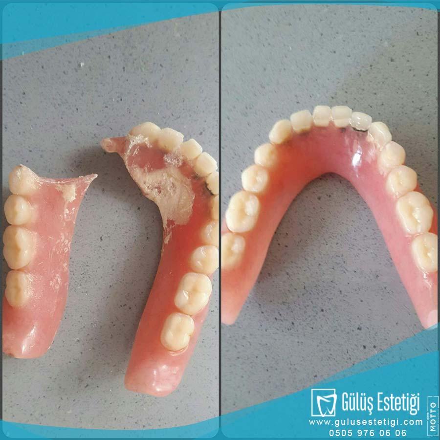Çatlamış Diş Protezleri Hakkında