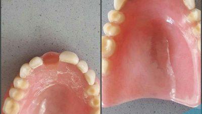 Damak Diş İlavesi