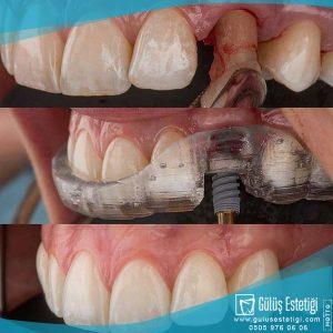 Vidalı diş