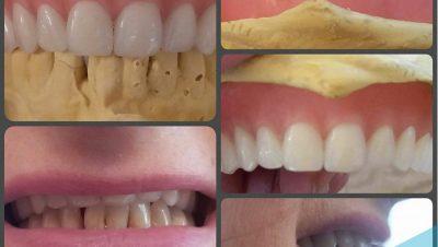Misafirlik diş tedavisi