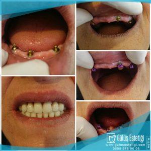 Ankerli çıtçıtlı diş protezi
