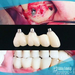 All on four implant sistemleri