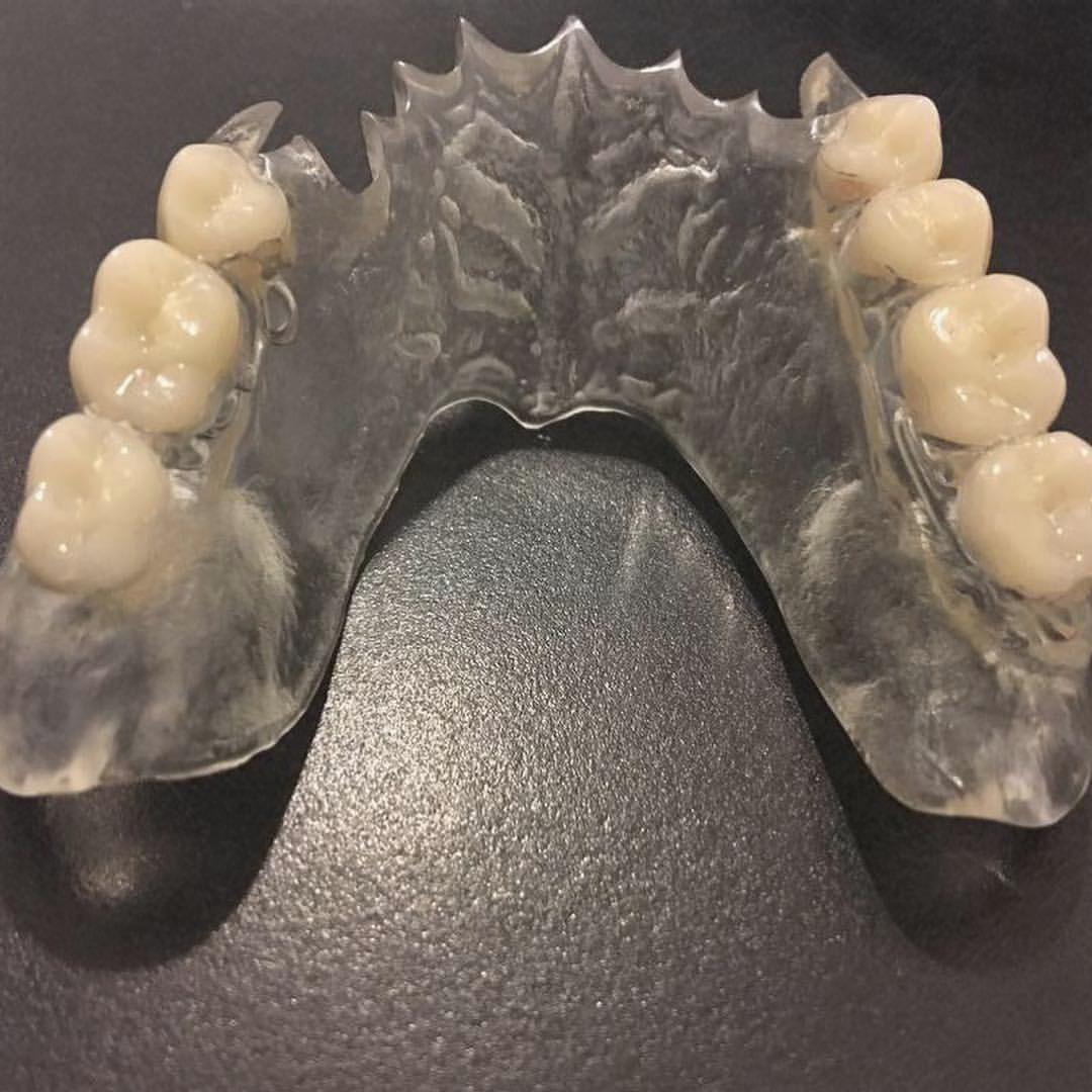 Deflex diş protez