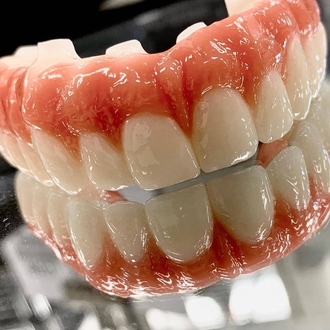 All on 6 implant