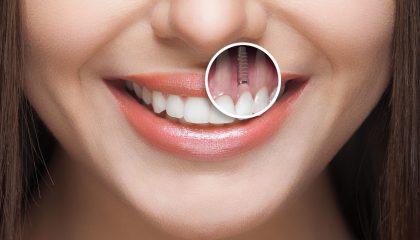 Ankara Diş Hizmeti Veren Klinikler