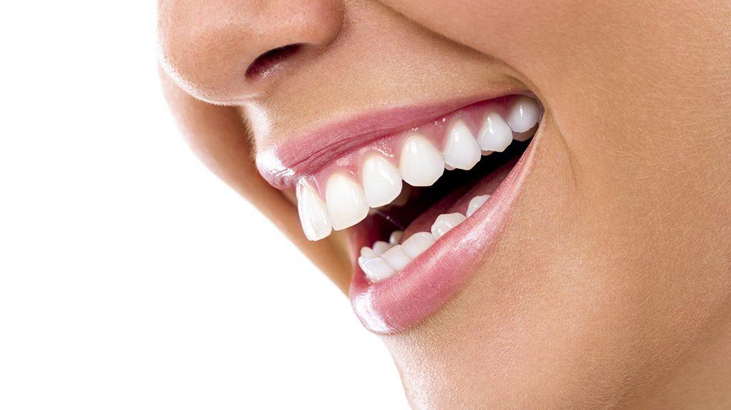 Ankara Yüze Özel Diş Estetiği